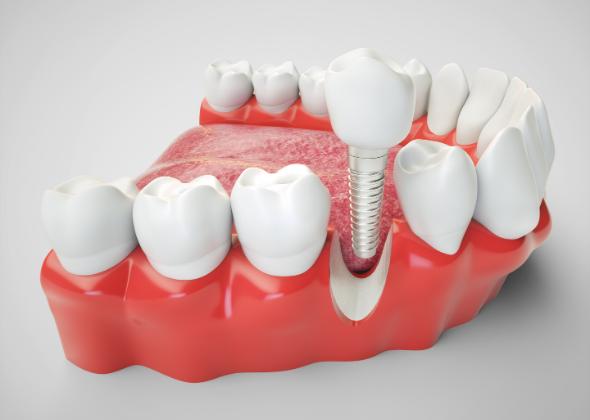 Implante dental, ¿qué es y en qué consiste?