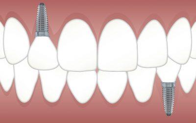 Tipos de prótesis dental