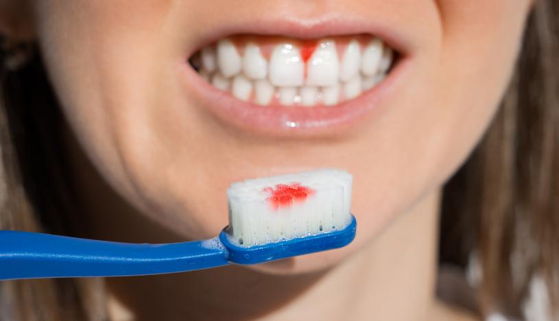 dolor inflamación y sangrado de las encías