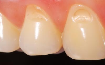 Qué es la hipoplasia del esmalte dental y qué tratamientos tiene