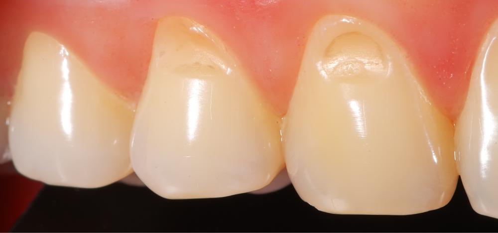 hipoplasia del esmalte dental