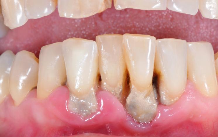 Estadios de la periodontitis y tratamiento