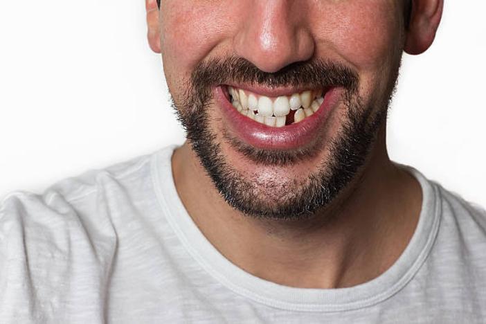 Beneficios de reponer la pérdida de los dientes