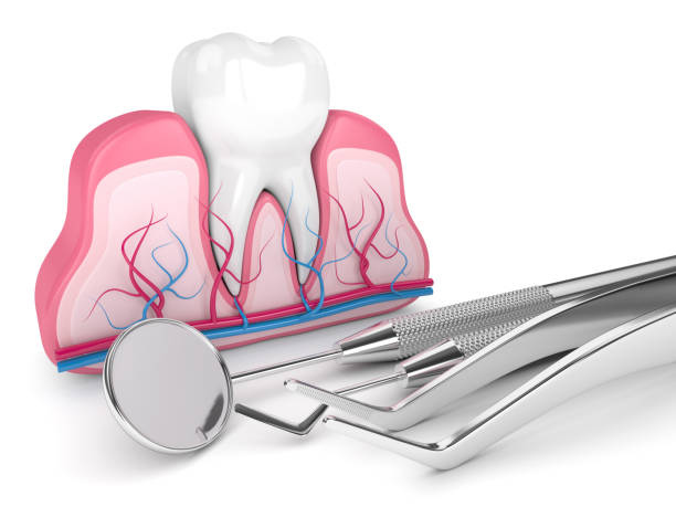 Qué es una endodoncia y en qué consiste